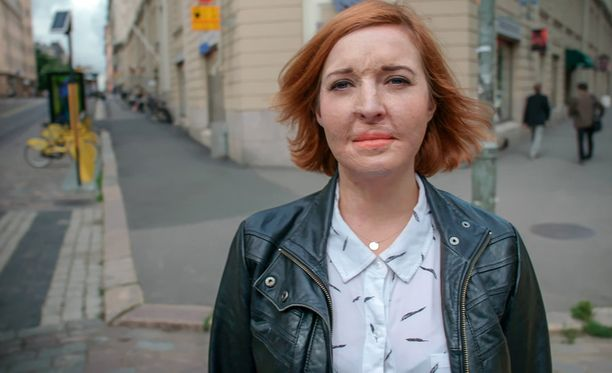 Pahoin palaneelle Ulrika Björkstamille on tehty yli 20 leikkausta.