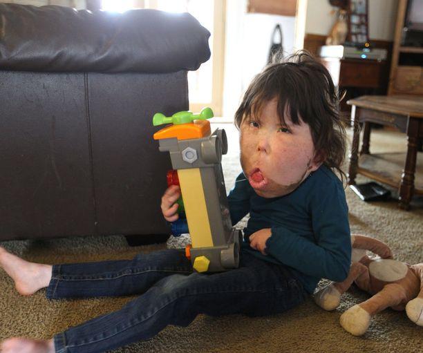 -Hän rakastaa leikkiä ja tehdä kaikkea muuta mitä tavallisetkin lapset tekevät, Katien äiti Angie Renfroe kertoo.