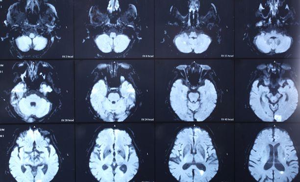 Aivot saattavat reagoida arvaamattomasti pitkän kooman jälkeen.