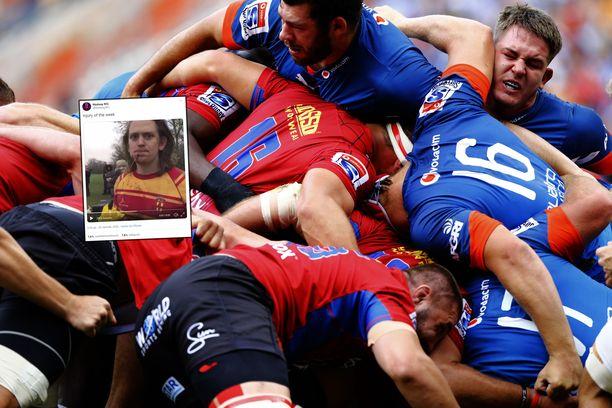 Rugbypelaaja sai ikävän näköisen vamman kasvoihinsa. Kuvituskuva.