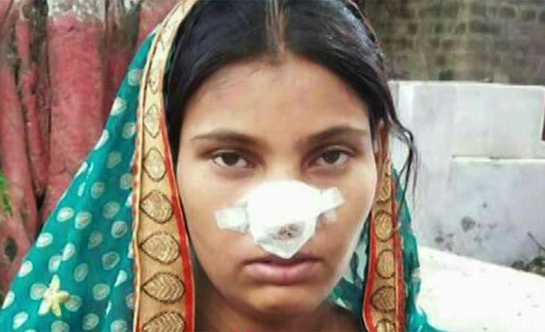 Tapaukset, joissa mies on leikannut vaimonsa nenän irti ovat lisääntyneet Intiassa huolestuttavasti. Myös Khazana Devin mies leikkasi häneltä nenän irti.