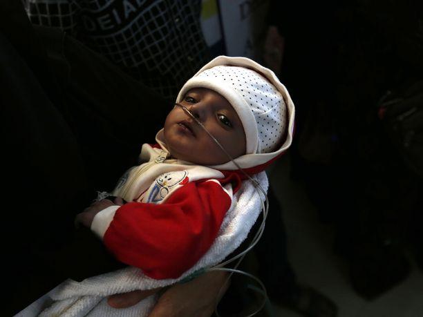 Sairas pikkulapsi odotti pääsyä hoitoon pääkaupunki Sanaassa. YK haluaa avata ilmasillan Jemenin vakavasti sairaille potilaille, jotta nämä pääsisivät hoitoon ulkomaille.