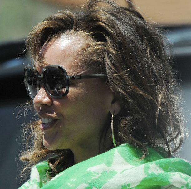 Vanessa Williamsin hiusraja näyttää pakenevan.