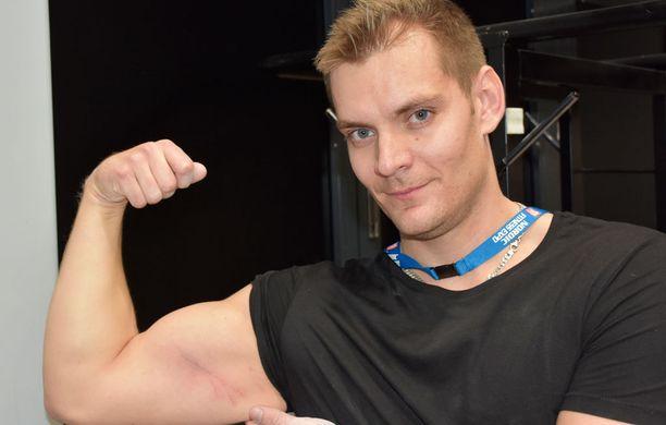 Magnus Westerberg sai viime viikonlopun väännöistä kunnon naarmun hauikseensa.