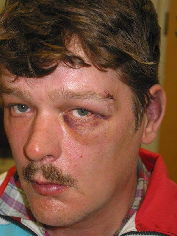 Pekka Tuukkanen katosi pitkällä kävelymatkallaan kaverinsa luota kotiin.