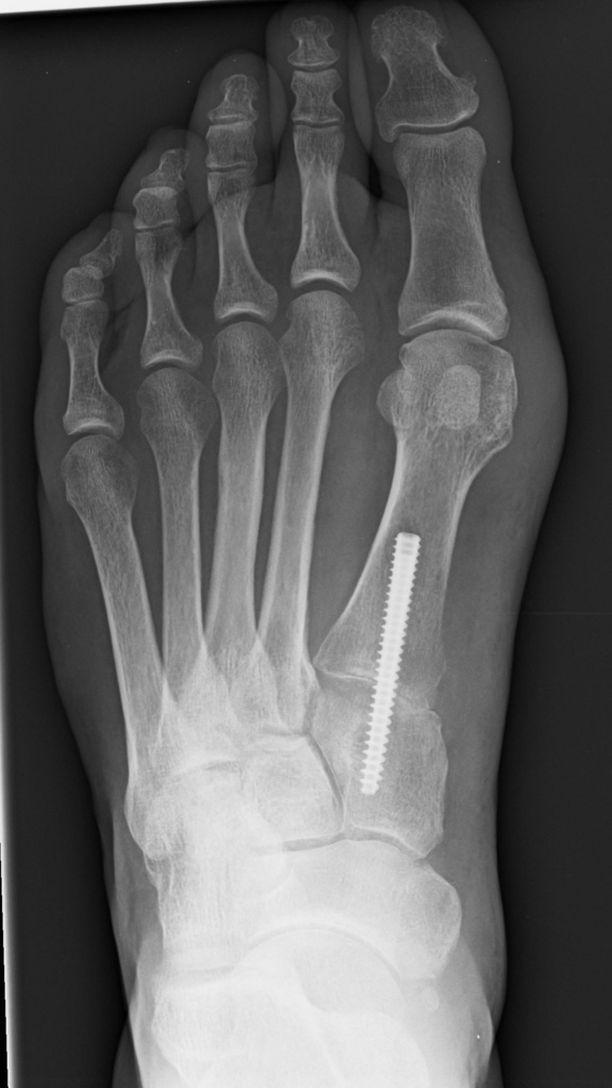 Isovarpaan tyviniveleen pattia ei poisteta, vaan jalkapöytäluun virheasento korjataan.
