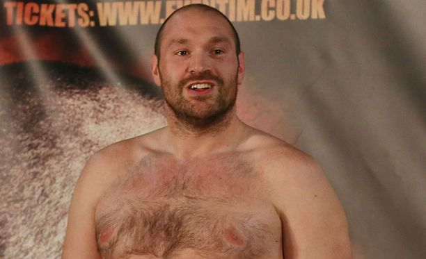 Tyson Furyn möläyttely raivostuttaa nyrkkeilypiireissä.