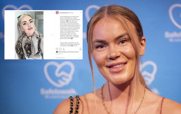 Rosanna Kulju katuu huulten täyttämisoperaatioita. Kuvassa Rosanna vuonna 2019.