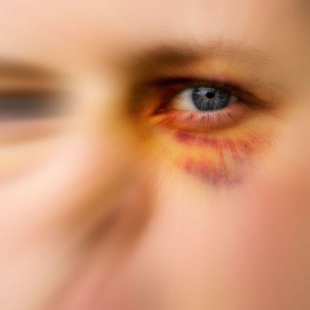 Duuma hyväksyi lakimuutoksen, joka lieventää rangaistusta perheväkivallasta.
