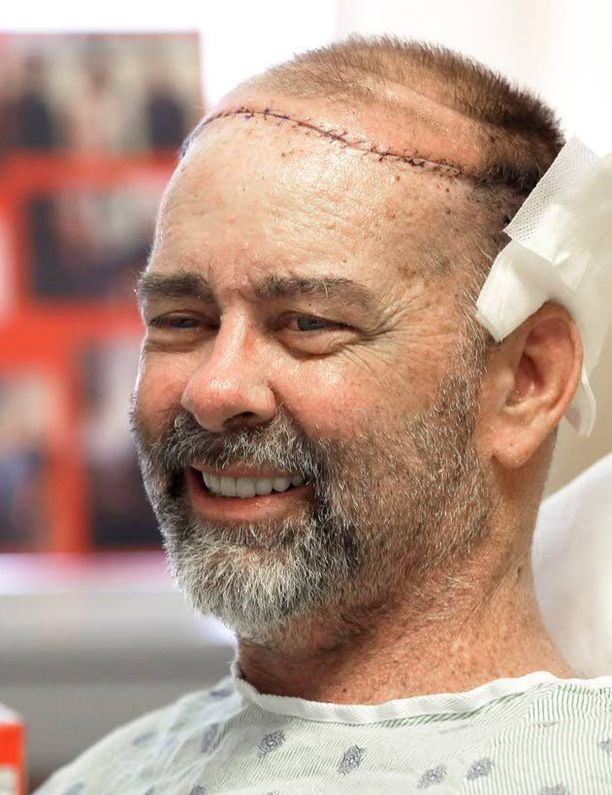 James Boysenille tehtiin maailman ensimmäinen osittainen kallonsiirto, jossa luovuttajana oli ihminen.