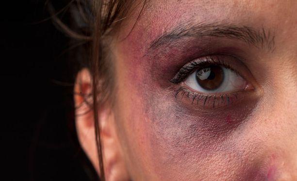 Kunniaväkivallan tunnistaminen on Suomen viranomaisille haasteellista.