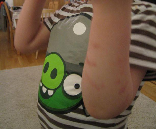 Viisivuotias vantaalaispoika sai viime maaliskuussa mustelmia päiväkodissa kiinnipitotilanteessa. Vanhemmat tekivät tapauksesta rikosilmoituksen.