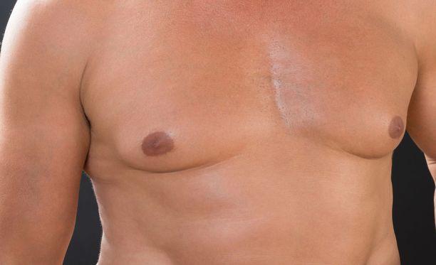 Miesten rinnat voivat kasvaa myös silkasta lihomisesta.