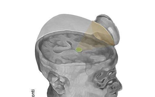 Uskomaton läpimurto: Kaksi pitkäaikaista koomapotilasta herätettiin tajuihinsa yksinkertaisella ultraäänihoidolla, jonka voisi tehdä jopa kotona