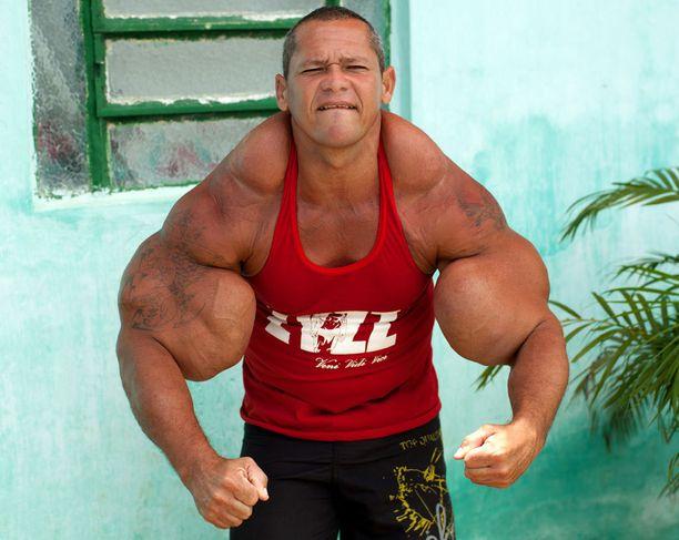 Arlindo de Souzan lihakset näyttivät järkyttäviltä vuonna 2014.
