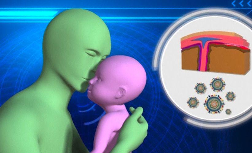 Aivokalvontulehdus Lapsella