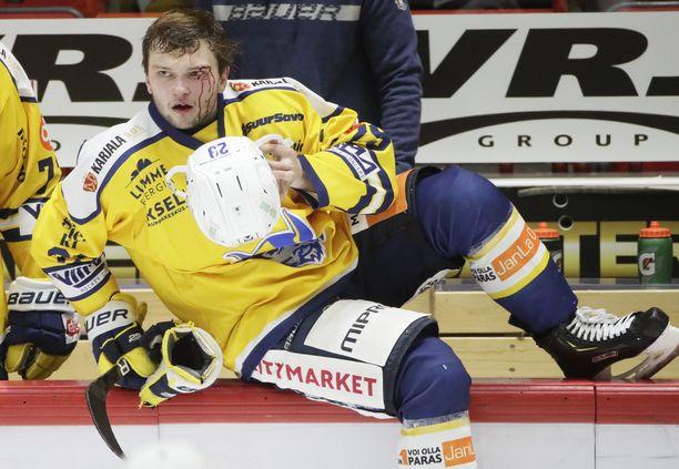 Jukurien Nikita Krivokrasov lähti verta valuvana lääkärin pakeille mutta pystyi palaamaan vielä peliin.