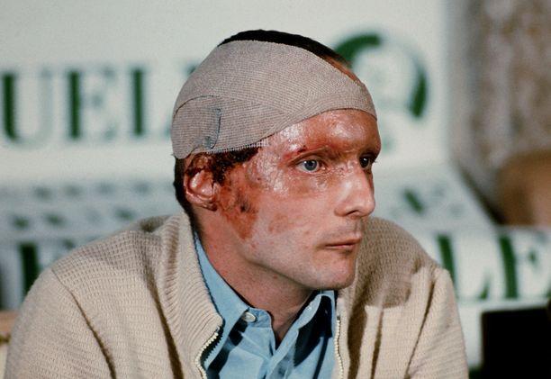 Niki Lauda teki hämmästyttävän paluun kilparadoille vain kuusi viikkoa vakavan onnettomuuden jälkeen. Kuva syyskuulta 1976.