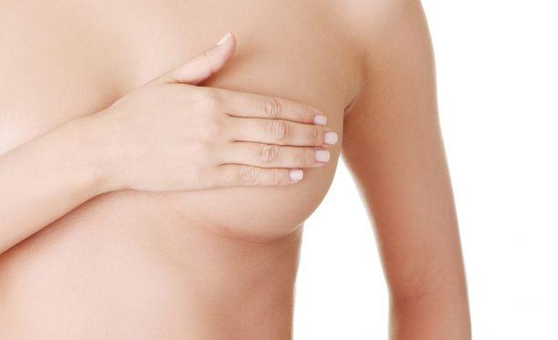 Rintasyöpä on naisten yleisin syöpä.