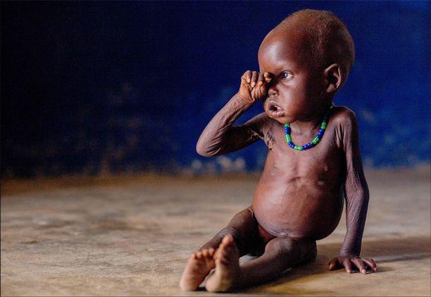 Unityn osavaltiosta pelastunut, pahasti aliravittu 1,5-vuotias Nyibel Deng Akol viime tammikuussa. Lapsen isä sai surmansa taisteluissa.