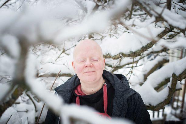Minttu Vettenterä sairastui alopecian vaikeimpaan muotoon keväällä 2015. Alopecian takia Mintulta lähtivät hiukset ja ihokarvat.