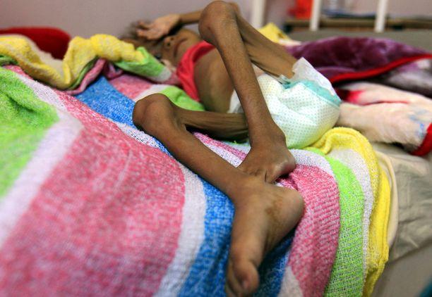 Aliravittu lapsi makasi vuoteella saadessaan hoitoa sairaalassa.