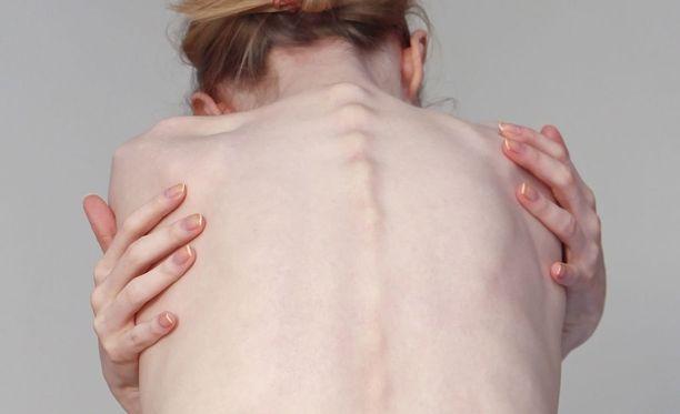 Syömishäiriöisen oma käsitys ulkonäöstään voi olla hyvin toisenlainen kuin muilla.