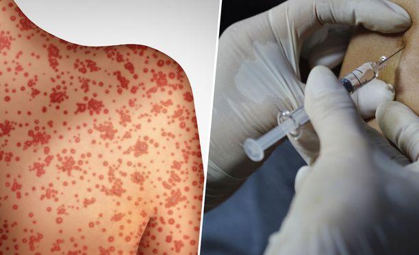 Tuhkarokko on erittäin tarttuva ja mahdollisesti myös vaarallinen tauti. Siltä voi suojautua rokotteella.