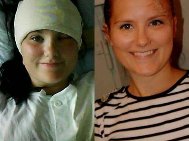 Sara Lundin yliopistollisessa sairaalassa Ruotsissa vuonna 2011 (oik) ja myöhemmin Oulussa kolmenkymmenen tikin kanssa. Kuva: Sara Kankaalan albumi.