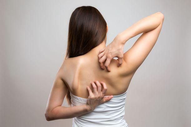 Kutiava lapa tai selän alue voikin olla hermostosta johtuvaa,