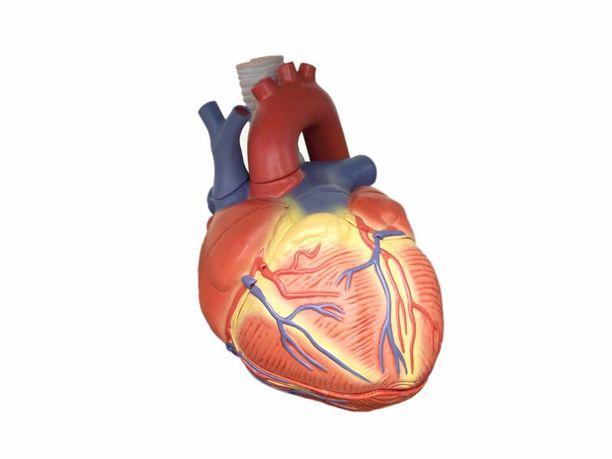 Sydämensiirto on erittäin vaativa operaatio.