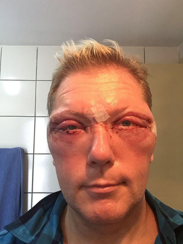 Keskinen kävi leikkauttamassa silmäpussinsa Brasiliassa.