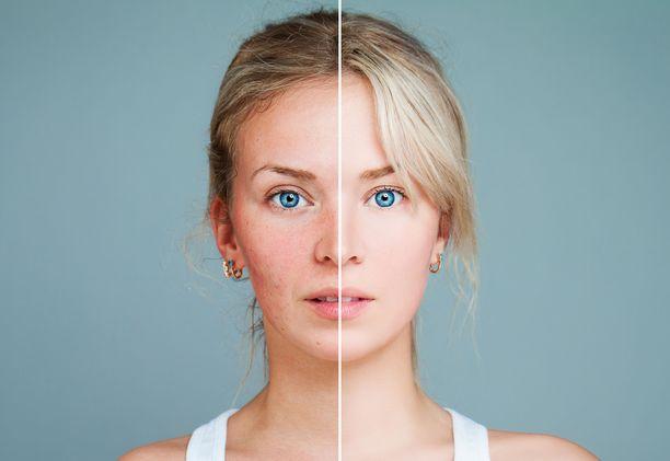 Kaikki ihon punoitusta, näppyläisyyttä sekä kutinaa aiheuttavat vaivat eivät ole aknea.