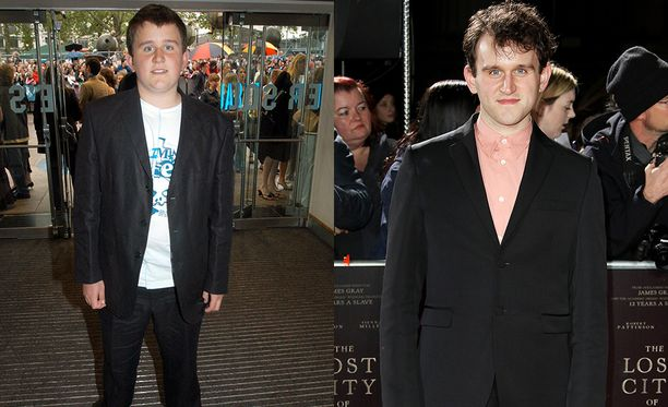Harry Melling, eli Dudley Dursley.