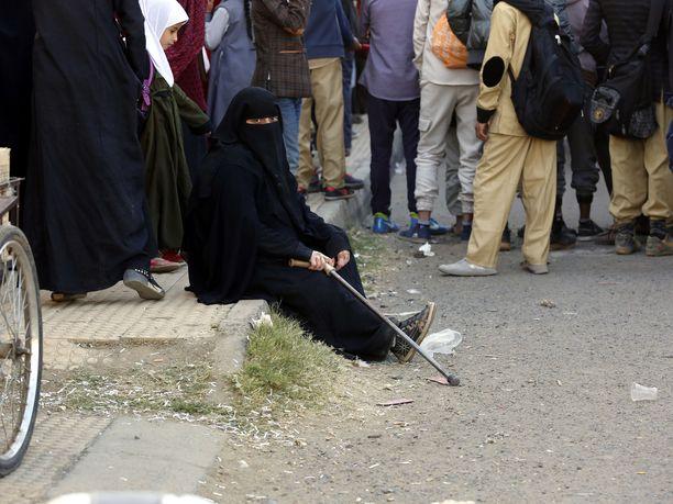 Jemenin sodassa haavoittuneet ja vammautuneet osoittivat mieltään sotaa vastaan Jemenissä joulukuun alussa.