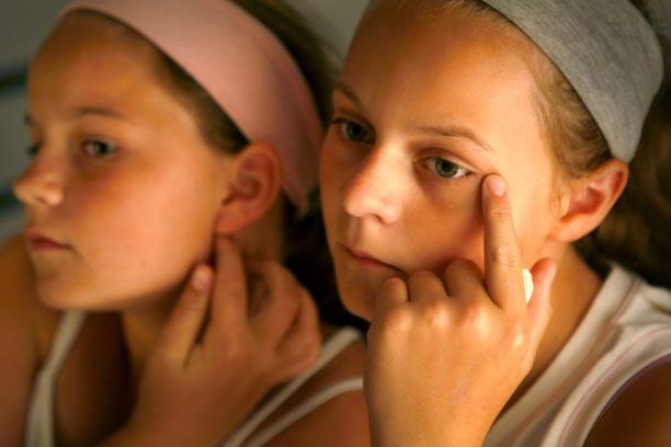 Finnejä ei kannata puristella tai nipistellä. Kasvojen näpertäminen voi saada finnit leviämään entisestään. Kuvituskuva.