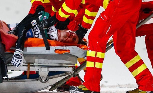 Simon Ammann loukkaantui verisesti Bischofhofenissa loppiaisena.