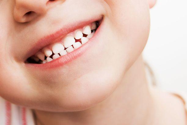 Hampaiden ehjänä pitäminen vaatii pitkäjänteistä työtä, jonka peruspilareina ovat terveellinen ruokavalio ja hampaiden päivittäinen puhdistaminen.