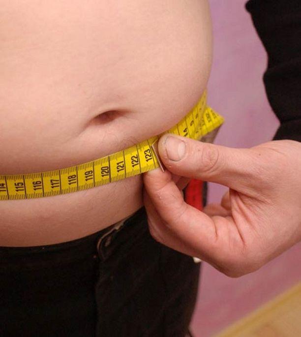 Asiantuntijan mukaan Suomessa on mittava ylipainoepidemia, johon tulisi puuttua.