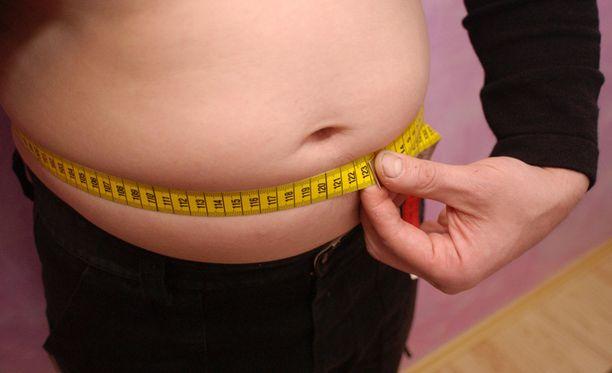 Liikalihavuus vie maailmassa todennäköisemmin hengen kuin ravinnon puute.