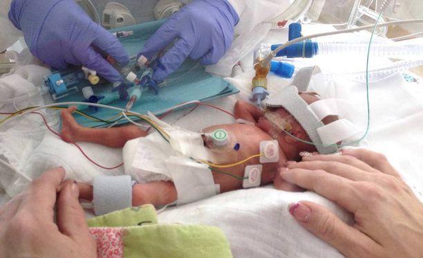 Säde eli 28 päivää. Hän syntyi kiireellisellä sektiolla Turun yliopistollisessa sairaalassa.