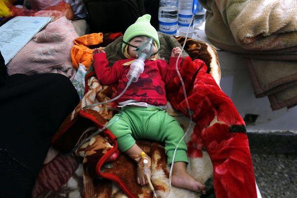 Aliravittua lasta hoidettiin maanantaina pääkaupunki Sanaassa.