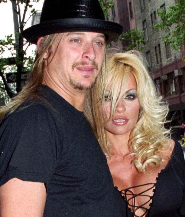 Pamela ja Kid Rock järjestivät kolmet häät. Silti liitto epäonnistui.