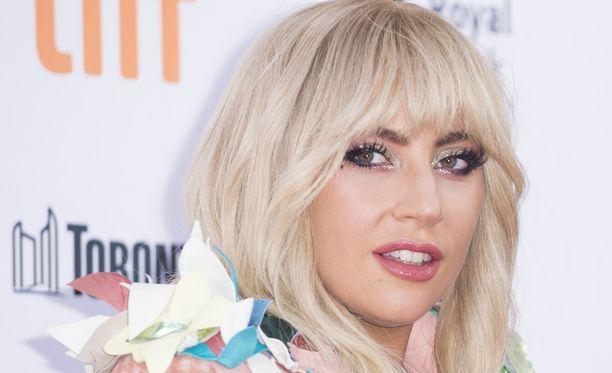 Lady Gaga kärsii lonkkakivusta.