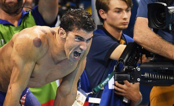 Michael Phelpsin olkapäitä koristivat näkyvät jäljet.
