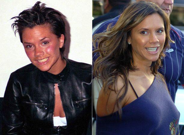Victoria Beckhamin hymykuvat ovat erittäin harvinaisia, mutta esimerkki vuodelta 1999 näyttää, kuinka tavalliselta tallaajalta keltaisine hampaineen Posh Spice näytti aiemmin.