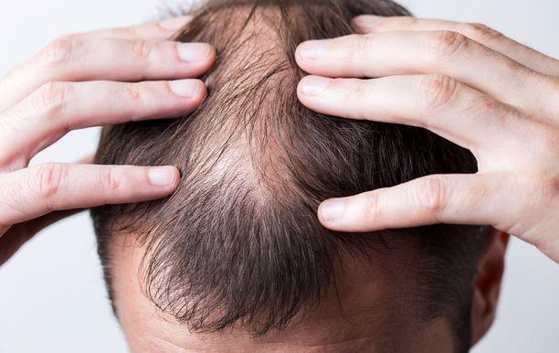 Noin neljännes COVID-19-taudista parantuneista on raportoinut hiustenlähdöstä.