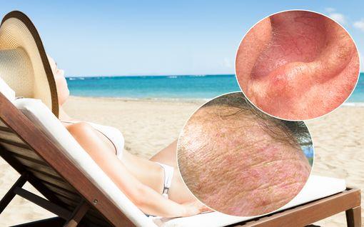Tunnistatko ihosyövälle altistavan lähes huomaamattoman muutoksen? Tältä aurinkokeratoosi voi näyttää