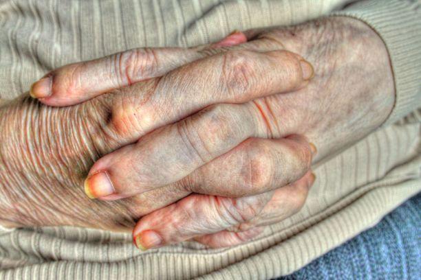 Tämä kuva on kuvituskuva. Kuva 93-vuotiaan järkyttävistä kynsistä alempana.