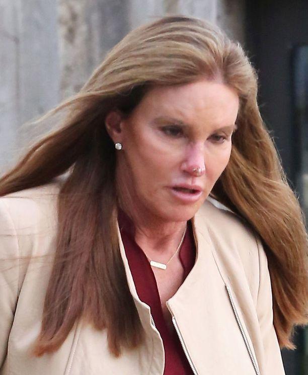Tältä Jennerin kasvot näyttävät nyt.